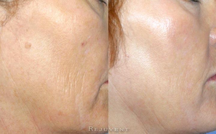 Skin treatment for less wrinkles on aging skin