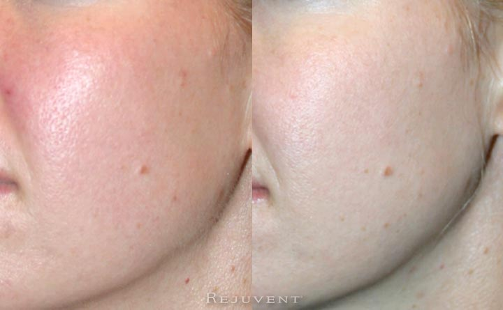 Large pores and skin redness correction - radiant skin