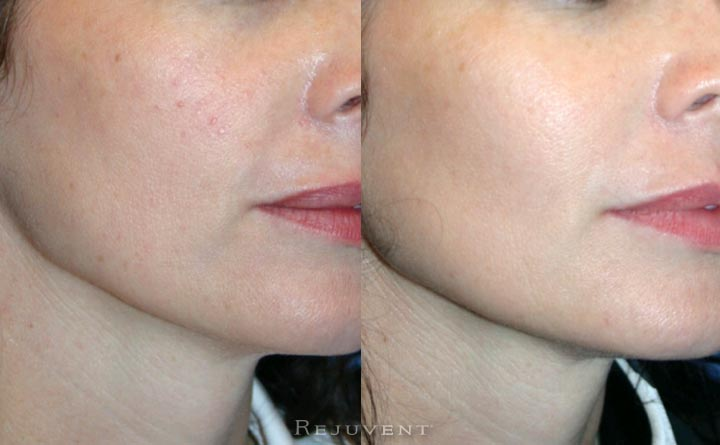 Redness and Texture improvement after skin treatment