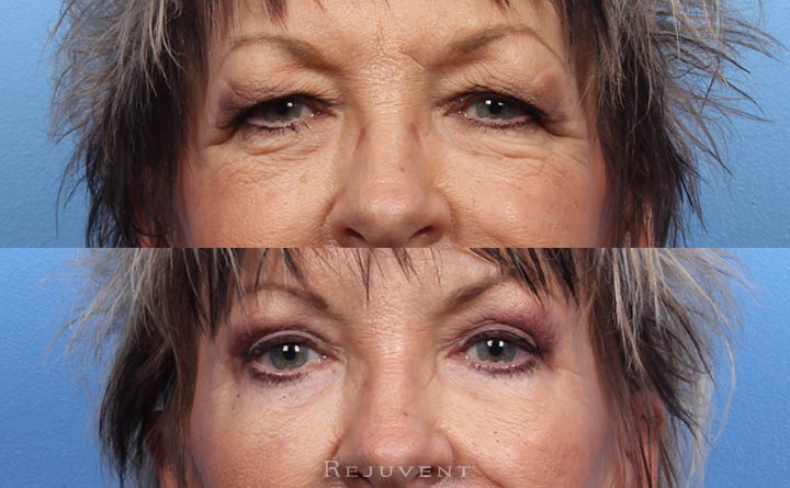 Upper Blepharoplasty Before and after photo