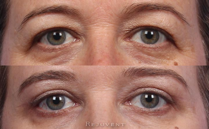 Upper eyelid surgery in Scottsdale