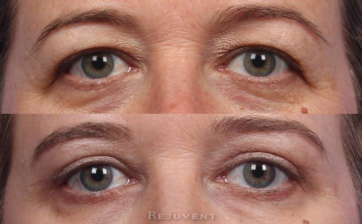 Upper eyelid surgery in Scottsdale