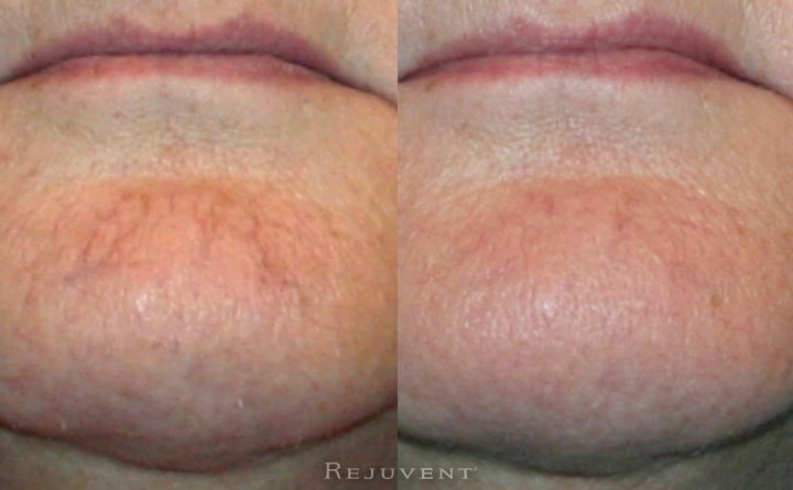 Veinwave spider vein results