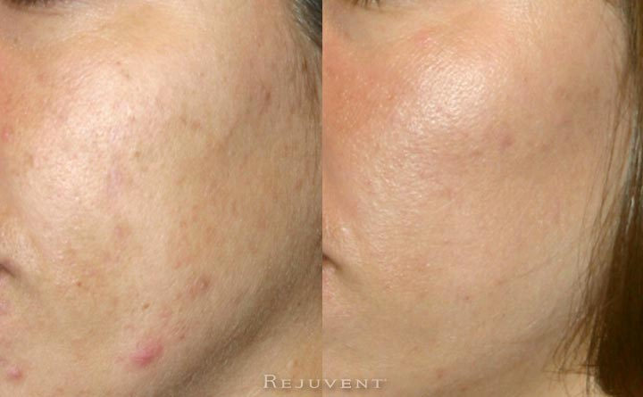 Acne and texture improvement