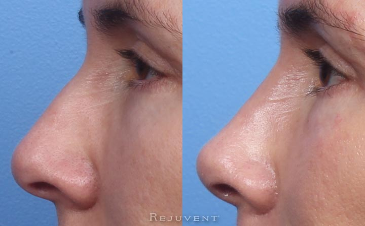 Non-surgical nose job with dermal fillers