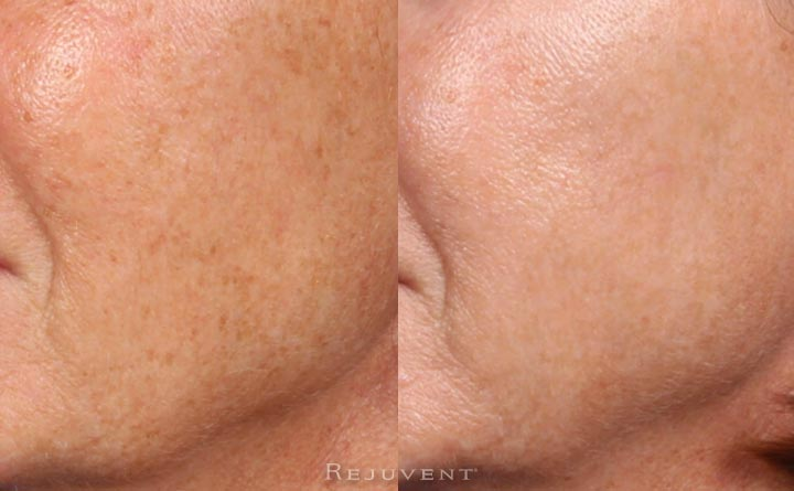 Improved pigmentation and skin texture