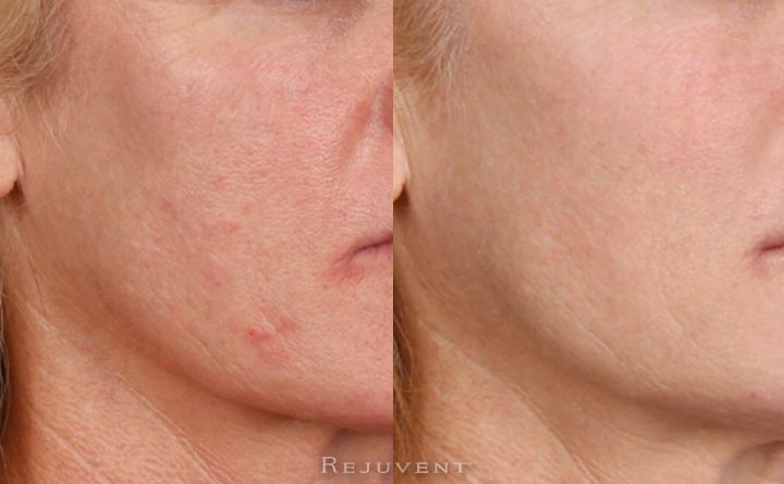 Beautiful and healthier skin after IPL, Peels and micro needling