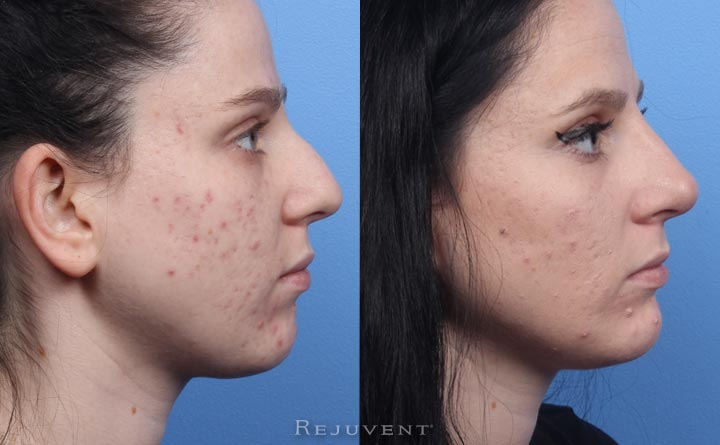 Non-surgical Rhinoplasty Beautiful results no surgery