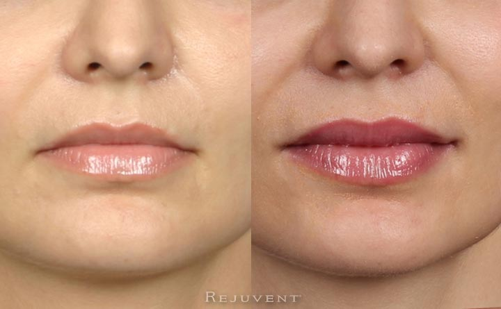 Fuller and plumper lips after filler