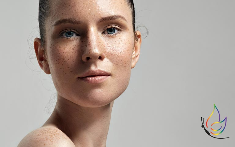 Image of model with hyperpigmentation and freckles