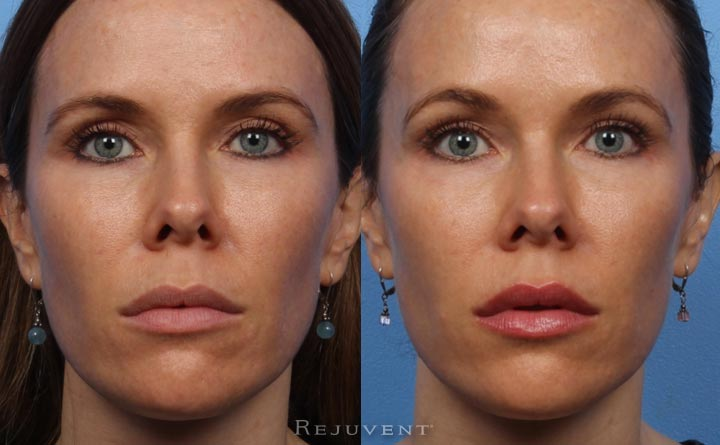 Beautiful Botox Before and After