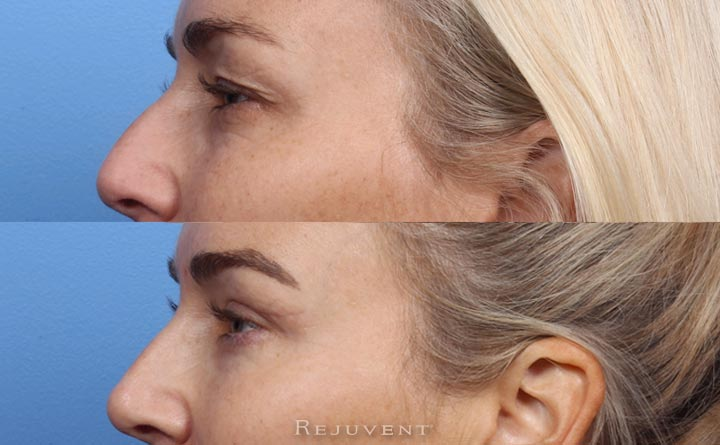 Upper and Lower Blepharoplasty at Rejuvent in Scottsdale