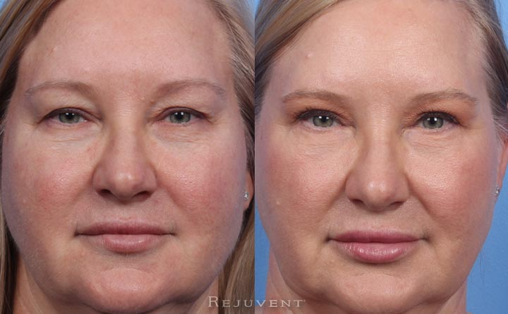 Beautiful Upper and Lower Blepharoplasty in Scottsdale