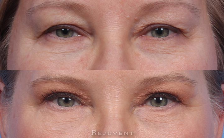 Closeup Upper Eyelid and Lower Blepharoplasty