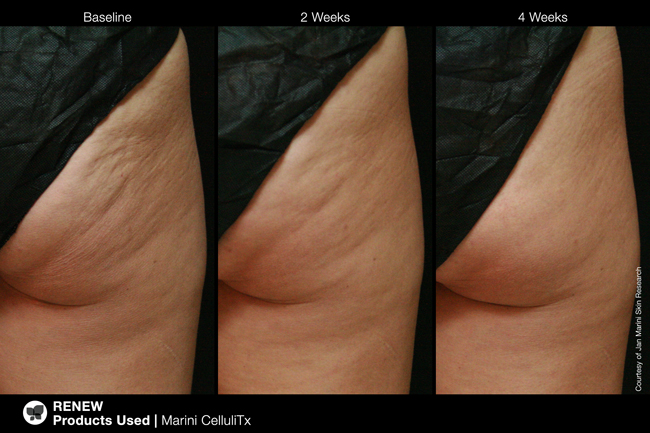 Before and after cellulite skin care treatment