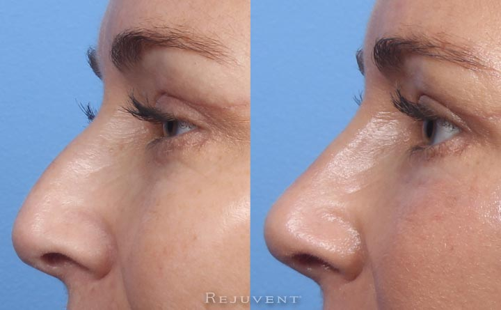 Natural looking Liquid Rhinoplasty Results