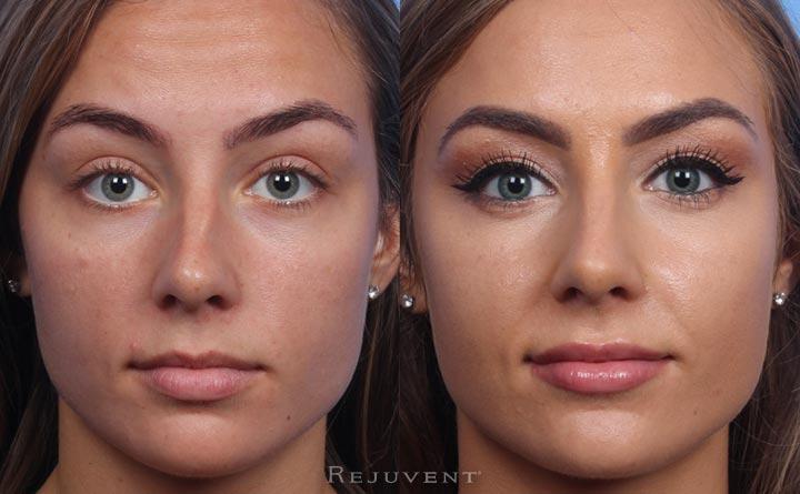 Non Surgical Nose Job Fracture Correction