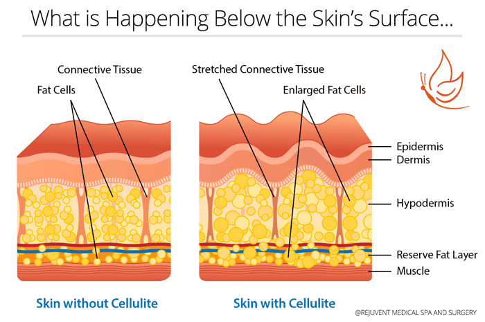 Skin diagram with and without cellulite