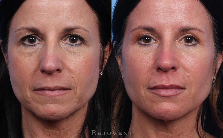 Beautiful Lower Face Rejuvenation with Fillers