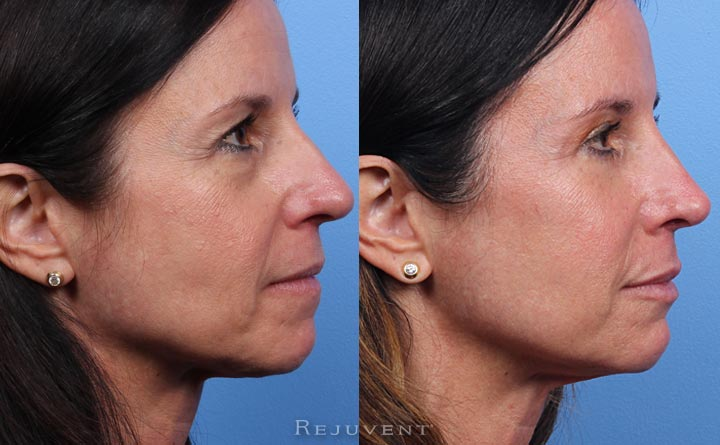 Side View Before and after Blepharoplasty with Dr. Bomer