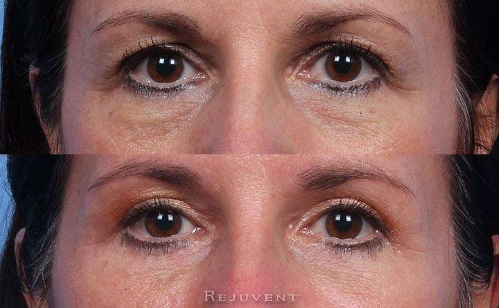 Before and After Blepharoplasty at Rejuvent