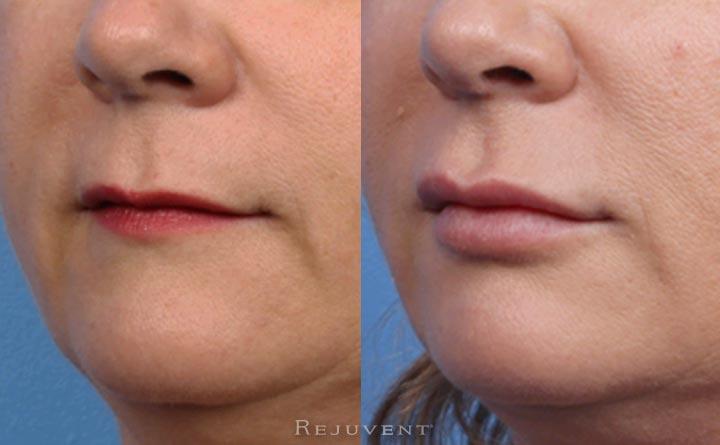 Fuller and more defined lip after lip fillers at Rejuvent