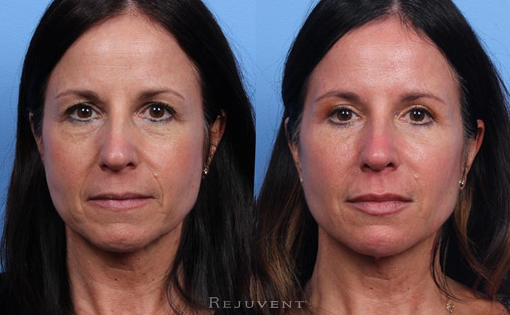 Liquid Facelift plus Upper and Lower Blepharoplasty