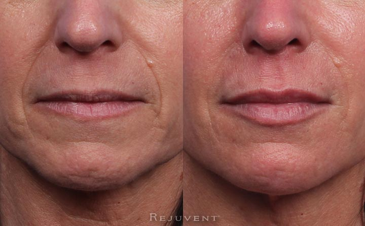 Lip Filler and Amazing Lower Face Rejuvenation