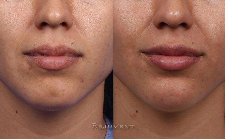 Beautiful Lips and Chin after dermal fillers at Rejuvent