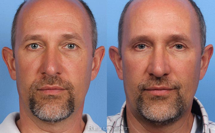 Lower and Upper Blepharoplasty Male Patient Before and After image