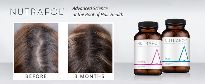Nutrafol intro banner with before and after image