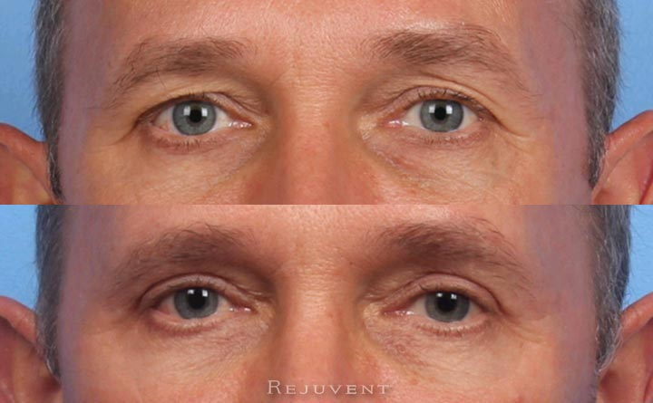 Male Patient Closeup Up Lower and Upper Eyelid surgery