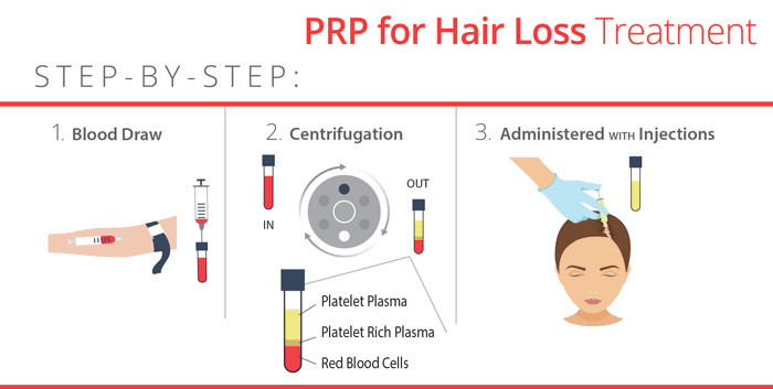 PRP for hair loss diagram