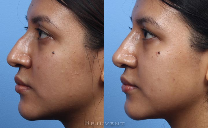 Beautiful non-surgical nose job in Scottsdale