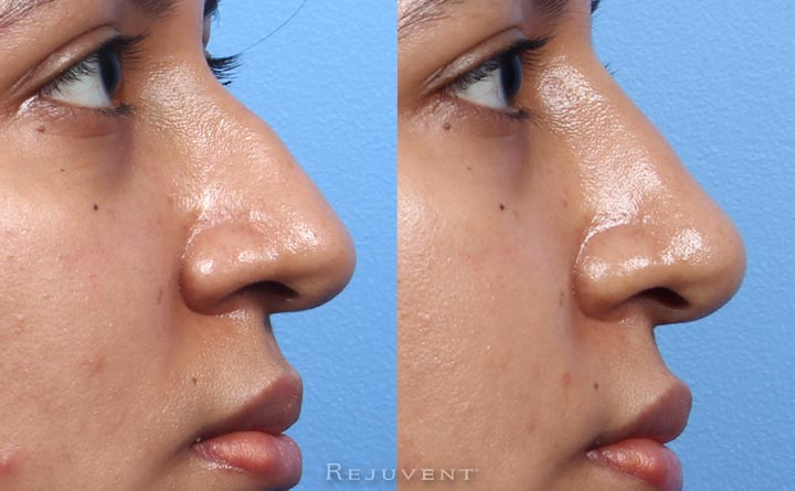 Non-Surgical Rhinoplasty beautiful results without downtime