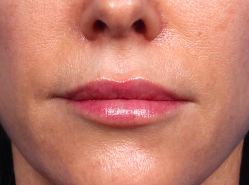Closeup of Dr. Bomer's lips at 53