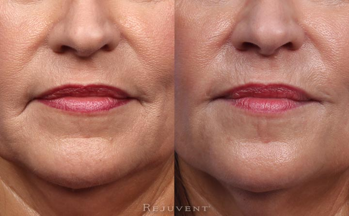 Rejuvenated lip area with Restylane Lyft in lips and marionette lines