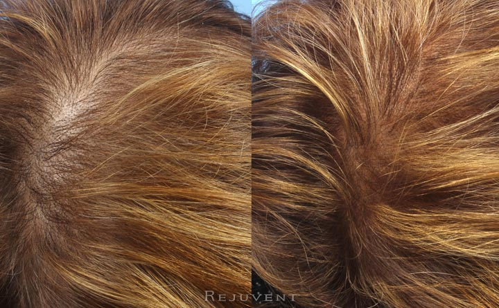 More hair after PRP treatment