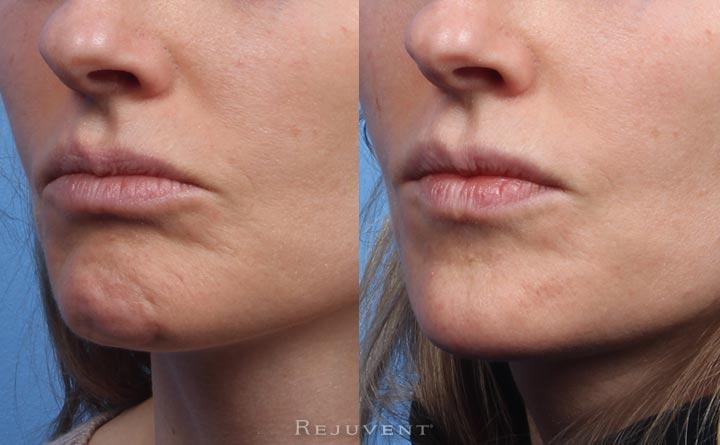 Restylane Lyft Chin Augmentation