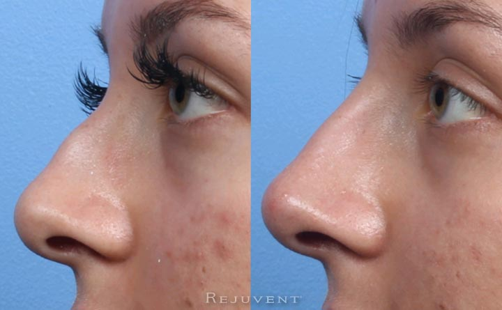 Non-Surgical Nose Filler in Scottsdale side view