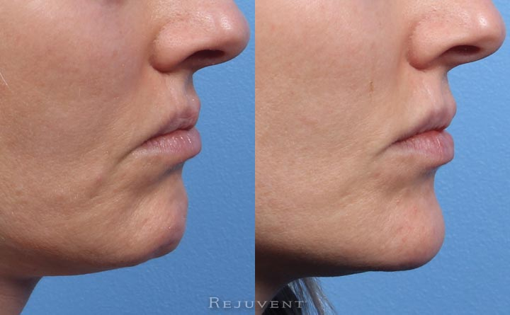 Chin augmentation with Restylane at Rejuvent in Scottsdale