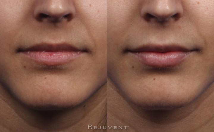 Front view beautiful Juvederm results