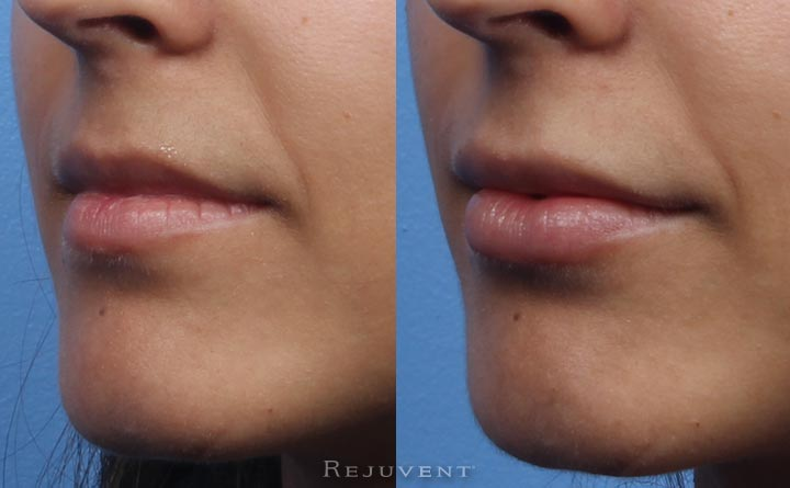 Side view Beautiful before and after lip injections