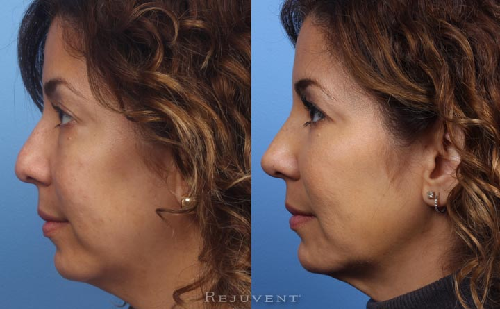 ThermiTight and Non-Surgical Nose Sculpting