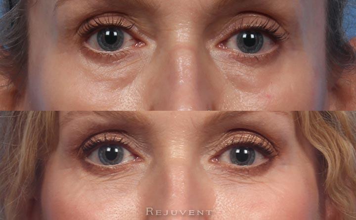 Under eye rejuvenation with filler in Scottsdale
