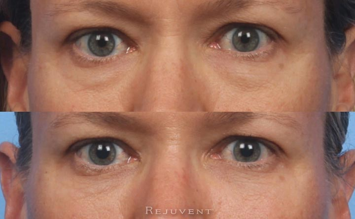 Beautiful before after under eye filler injection