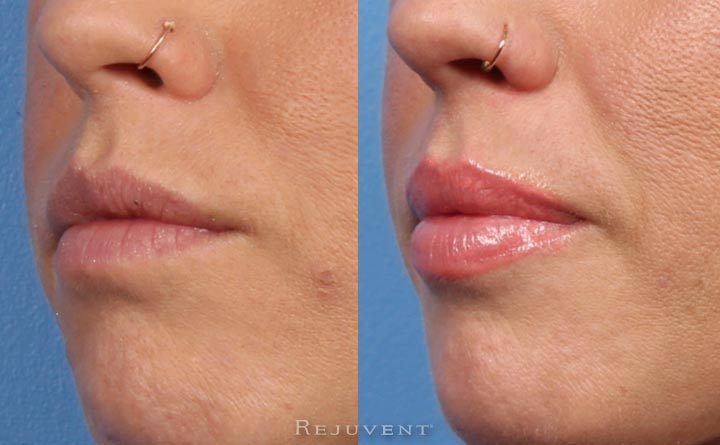 Plumper lips after lip injections at Rejuvent in Scottsdale AZ