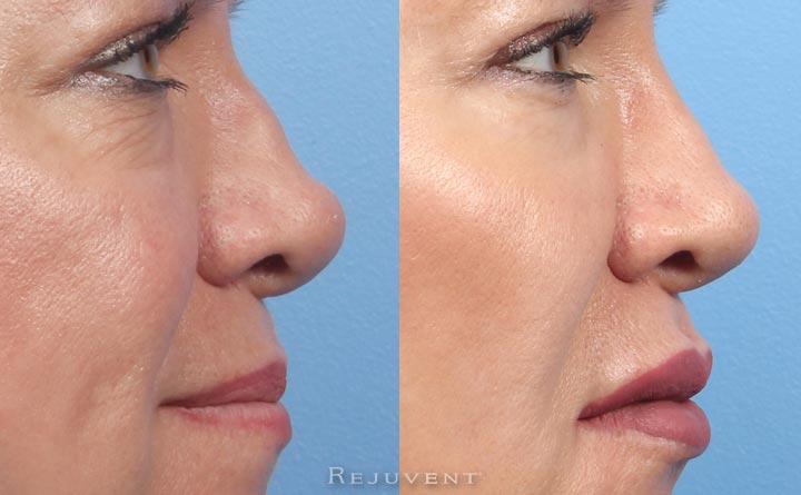Before and after Non- Surgical Nose filler nose closeup