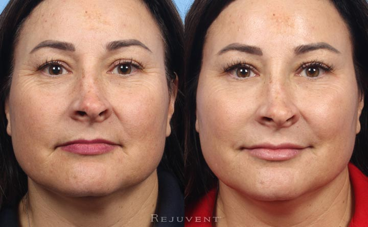 One session of Liquid Facelift