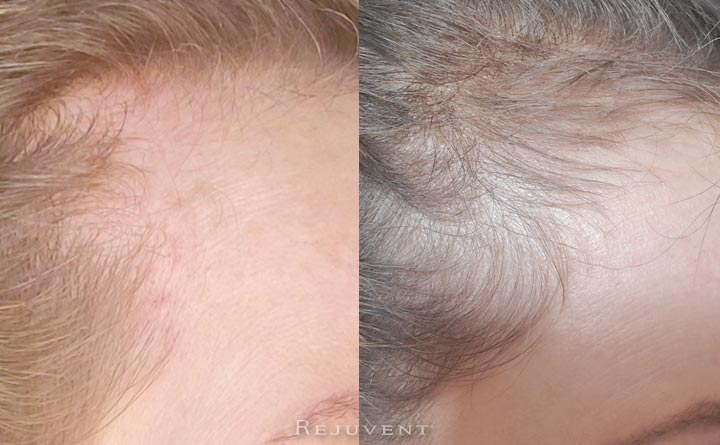 hair growth before and after image